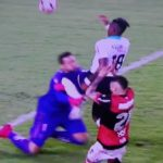 lesion diego alves flamengo junior